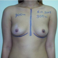 Breast Augmentation Process 04