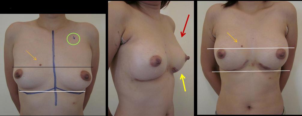 Bruising2