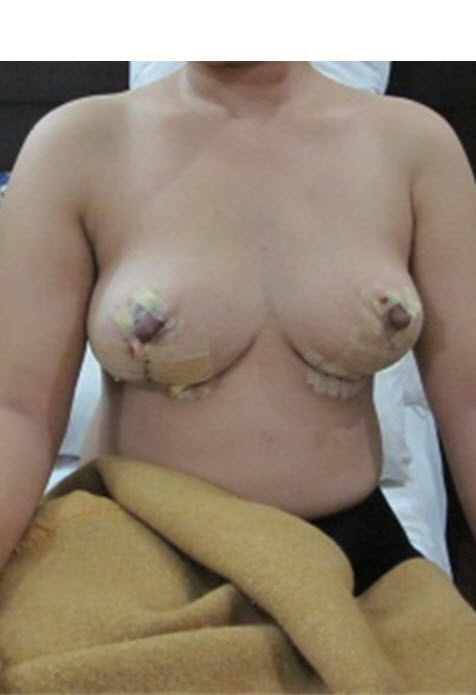breastliftthenaugment2-02