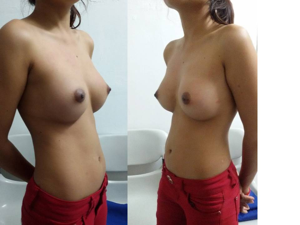AA 3 years post breast aug