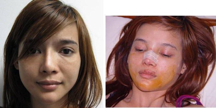 B&ACosmetic-Face-Slide07