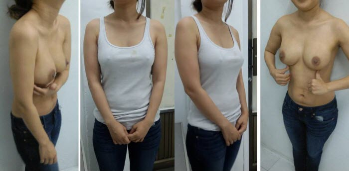 best_breast_augmentation_implants_surgeon_in_the_world_cambodia_000