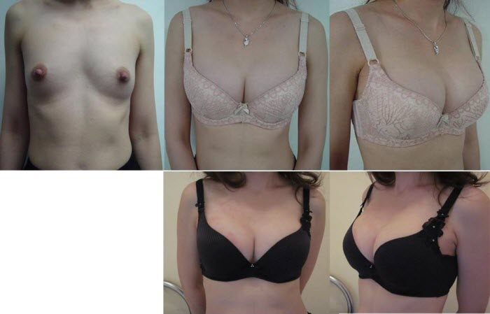 best_breast_augmentation_implants_surgeon_in_the_world_cambodia_015