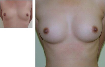 best_breast_augmentation_implants_surgeon_in_the_world_cambodia_020
