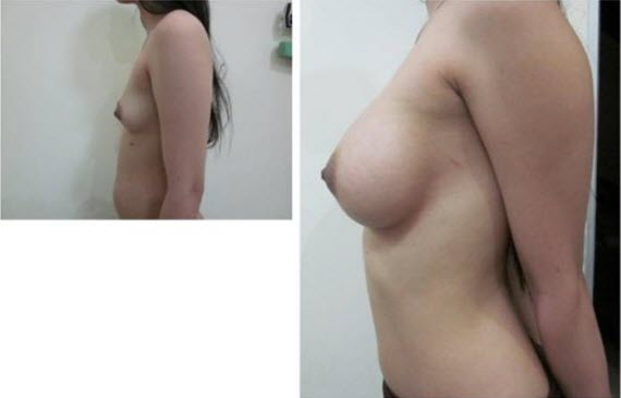 best_breast_augmentation_implants_surgeon_in_the_world_cambodia_030