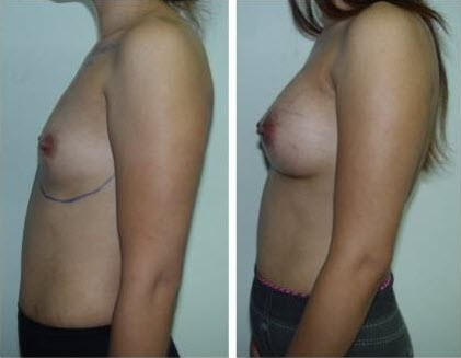 best_breast_augmentation_implants_surgeon_in_the_world_cambodia_035