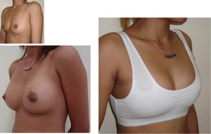 best_breast_augmentation_implants_surgeon_in_the_world_cambodia_040