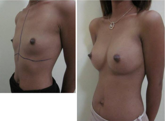 best_breast_augmentation_implants_surgeon_in_the_world_cambodia_045