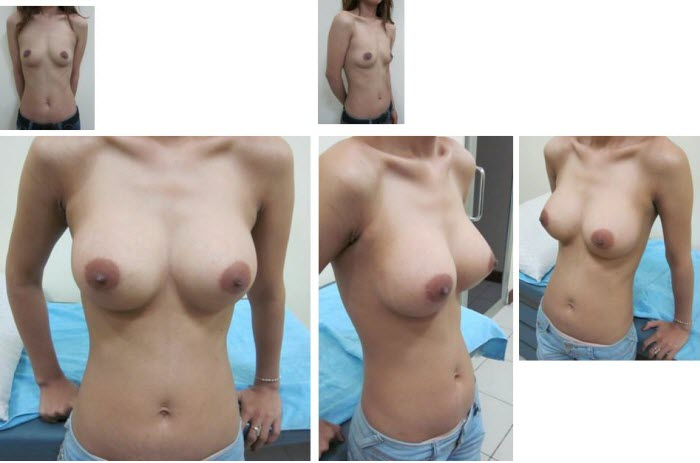 best_breast_augmentation_implants_surgeon_in_the_world_cambodia_055