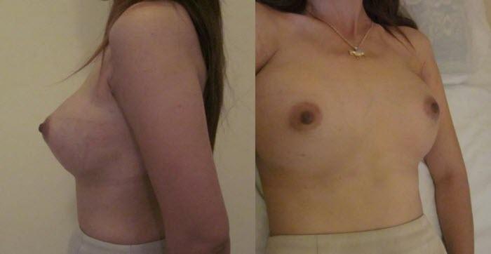 dr_reid_sheftall_cosmetic_plastic_surgery_breast_augmentation_implants_cambodia_015