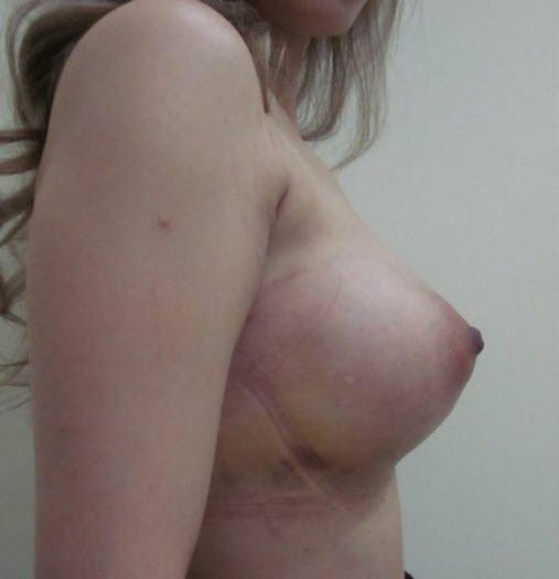 dr_reid_sheftall_cosmetic_plastic_surgery_breast_augmentation_implants_cambodia_020
