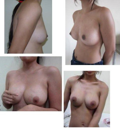 dr_reid_sheftall_cosmetic_plastic_surgery_breast_augmentation_implants_cambodia_050
