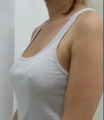 dr_reid_sheftall_cosmetic_plastic_surgery_breast_augmentation_implants_cambodia_060