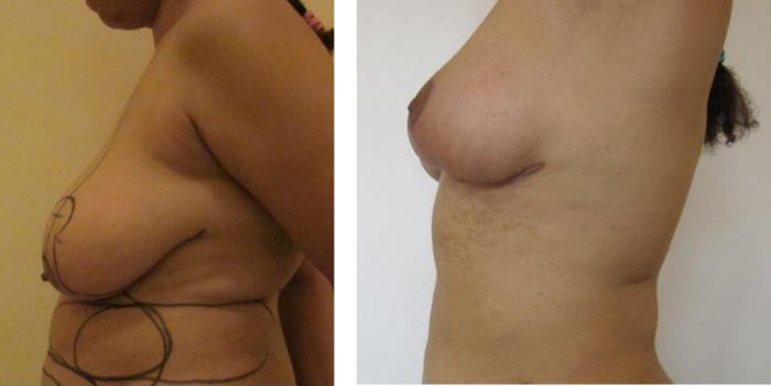 dr_reid_sheftall_cosmetic_plastic_surgery_natural_breast_augmentation_implants_cambodia_030