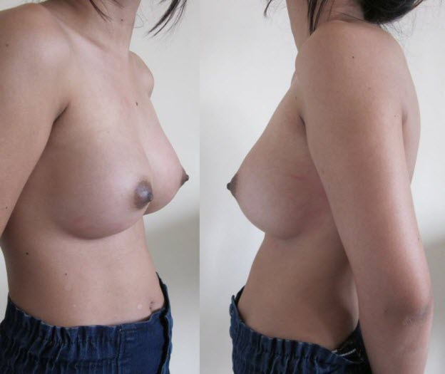 dr_reid_sheftall_cosmetic_plastic_surgery_natural_breast_augmentation_implants_cambodia_040