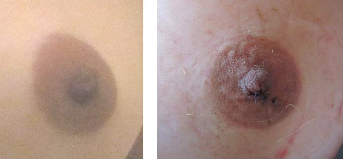 dr_reid_sheftall_cosmetic_plastic_surgery_natural_breast_augmentation_implants_cambodia_045