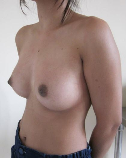 dr_reid_sheftall_cosmetic_plastic_surgery_natural_breast_augmentation_implants_cambodia_055