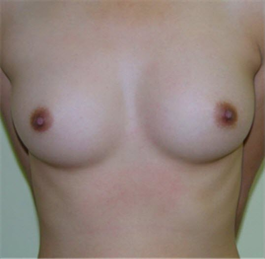 dr_reid_sheftall_cosmetic_plastic_surgery_natural_breast_augmentation_implants_cambodia_065