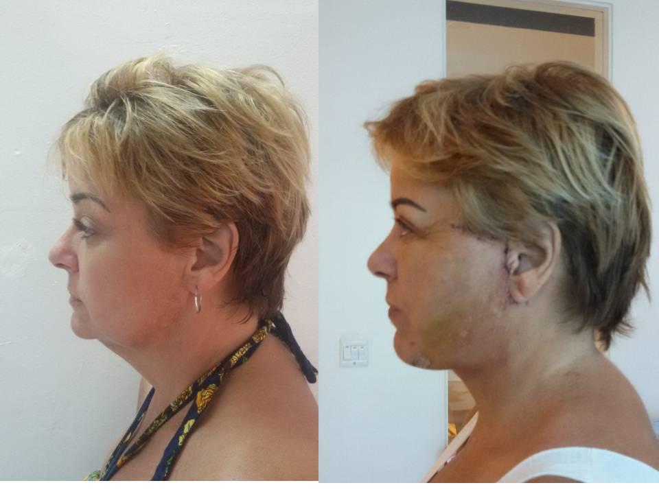Carol face lift profile